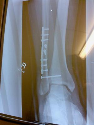 Ankle breakage